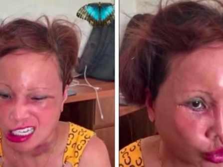 """Cô dâu 63 tuổi tiếp tục khiến cộng đồng mạng """"tá hỏa"""" vì khuôn mặt biến chứng sau phẫu thuật"""