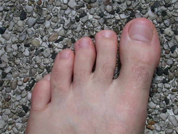 lông trên ngón chân mọc dày sẽ là dấu hiệu của tướng số tốt Marry