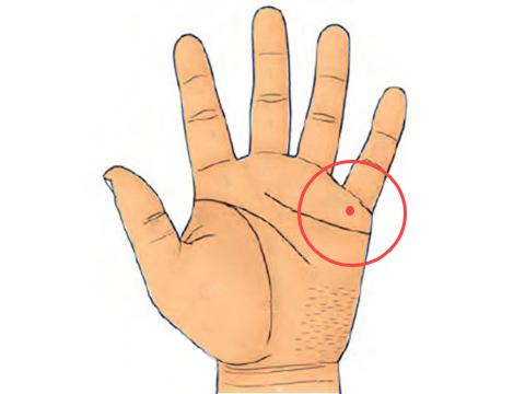 Nốt ruồi xuất hiện ở gò thủy tinh trong lòng bàn tay Marry