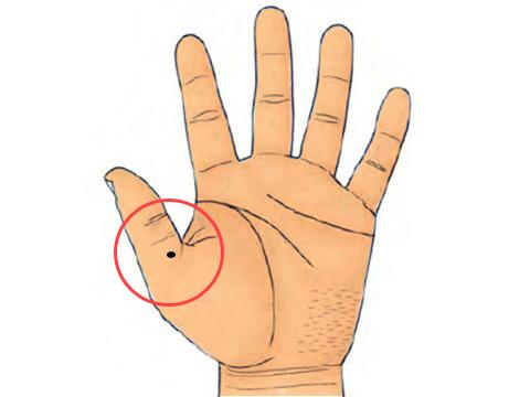 nốt ruồi mọc ngay gốc ngón tay cái Marry